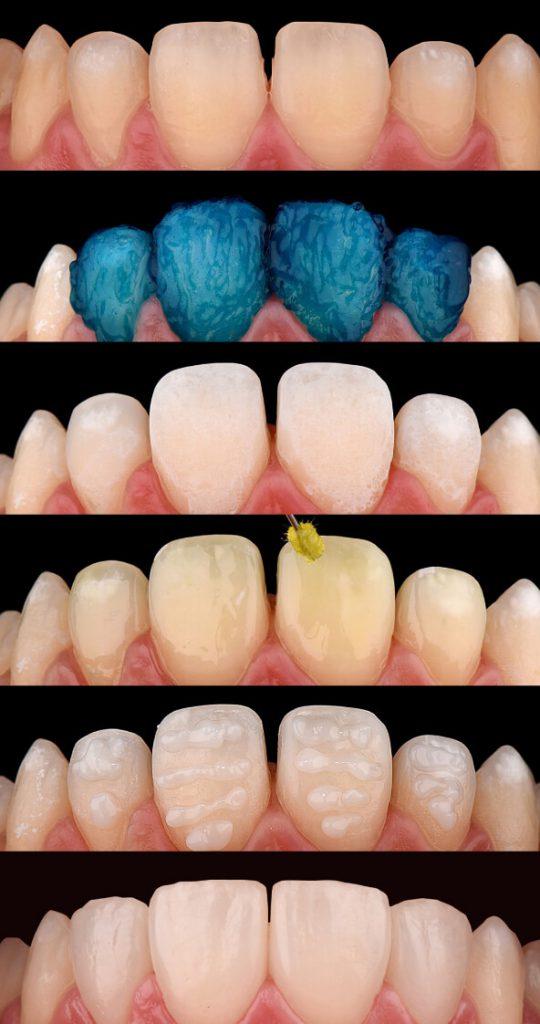 Colocación de carillas dentales
