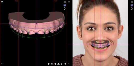 Situación inicial Digital Smile Design
