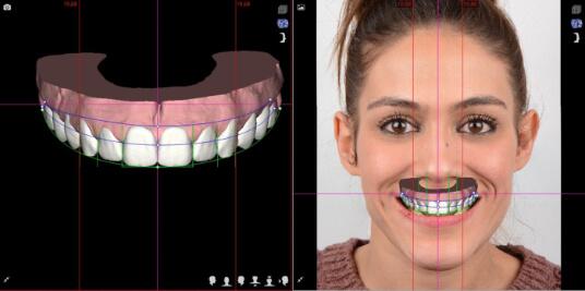 Modelo 3D Digital Smile Design