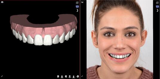 Mockup Diseño de Sonrisa Digital