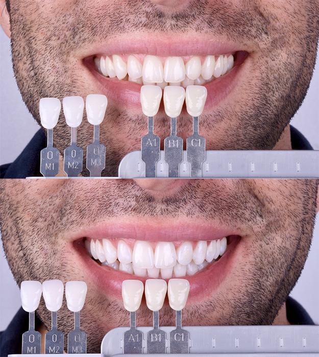 blanqueamiento dental en una cita