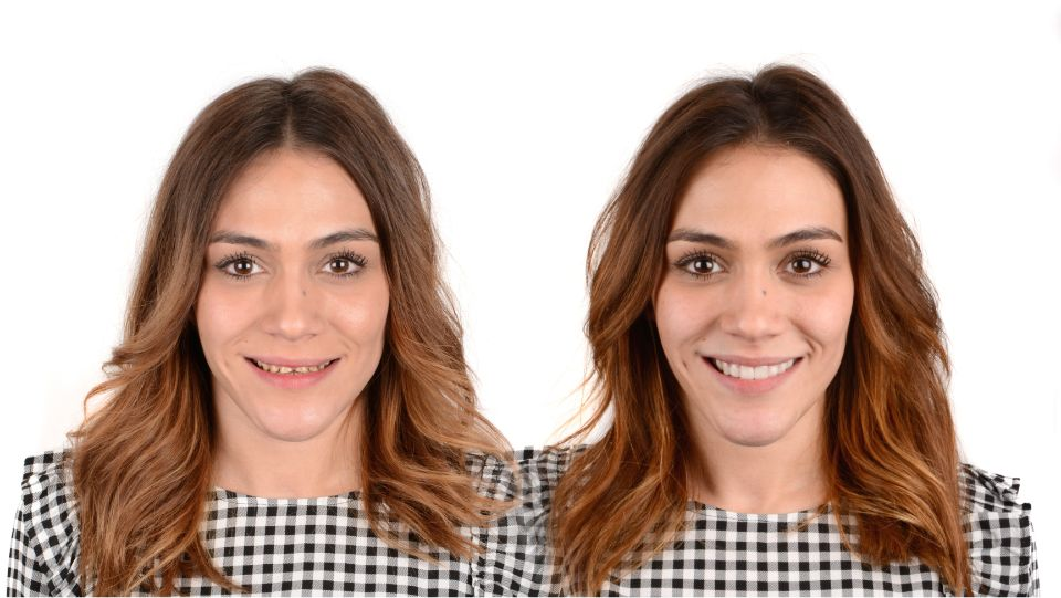 Simulación real Digital Smile Design
